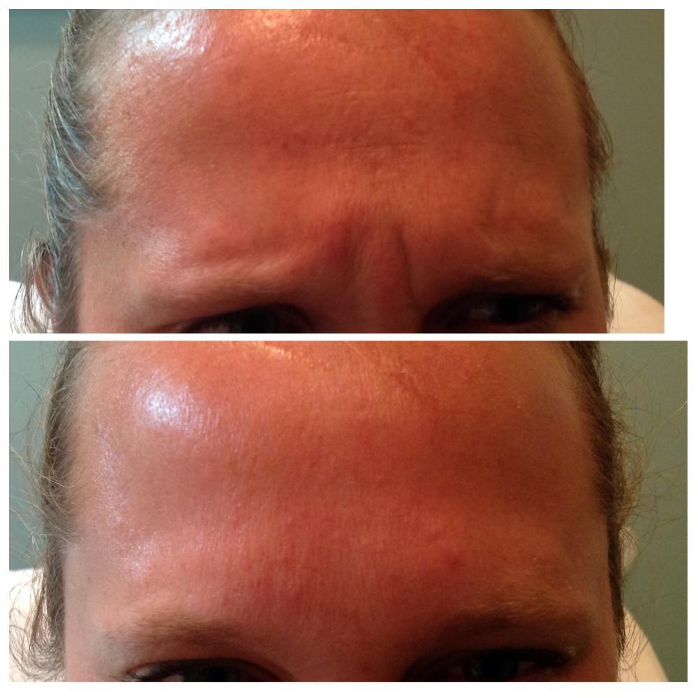 Missoula MT Medical Spa Medical Spa  RejuveCare Clinic - Haircut missoula