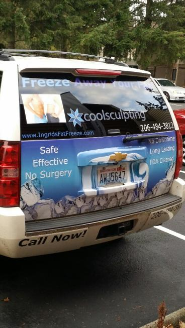 Coolsculpting tailgate wrap