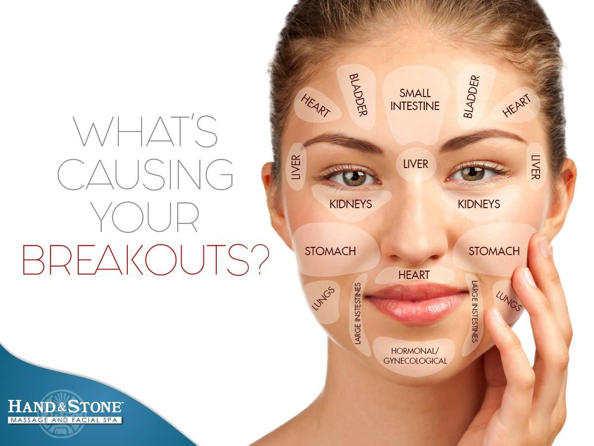 What's Causing Your Breakouts