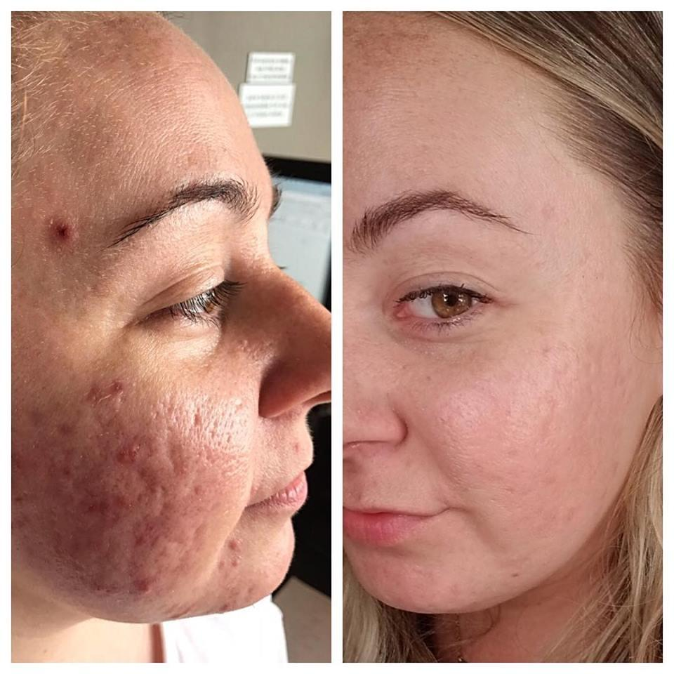 Before & After Dermalinfusion treatment