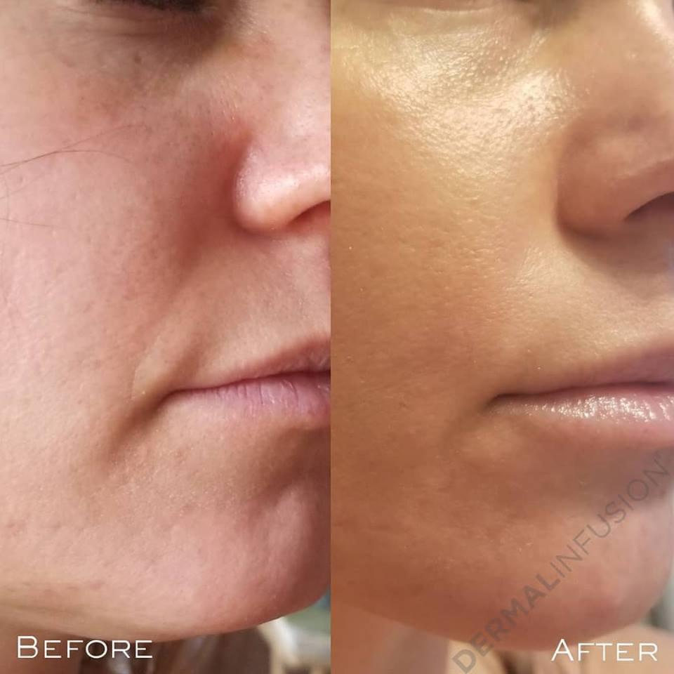 Dermalinfusion facial treatment