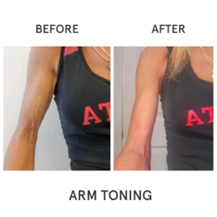 Before and After images of Arm Toning