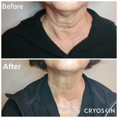 Before and After images of CryoSkin's effects on a neck